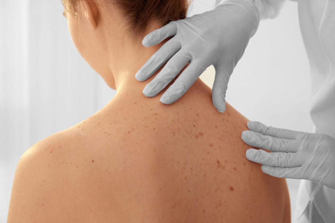 cure thermale en dermatologie