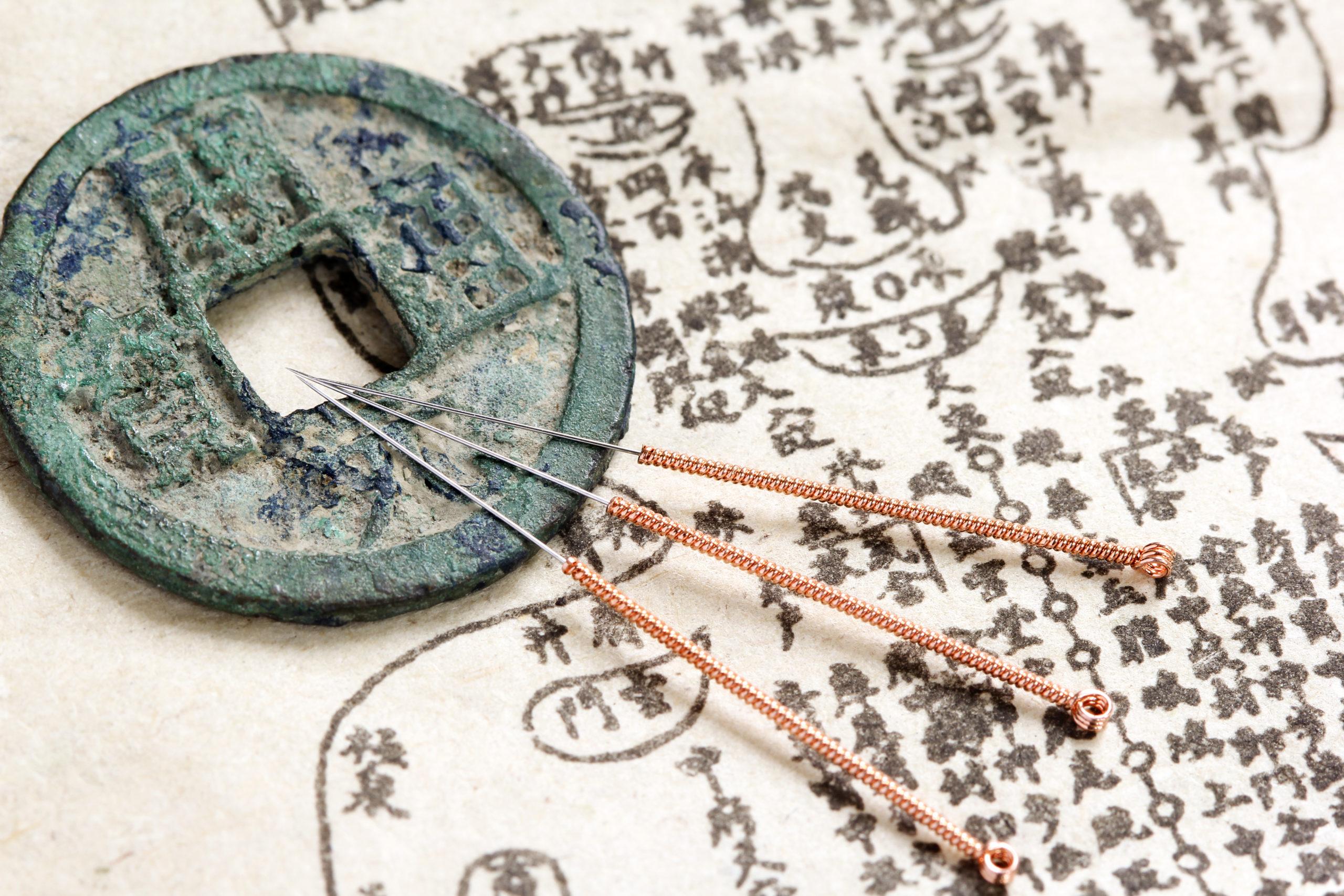 A la découverte de l'acupuncture ou acuponcture