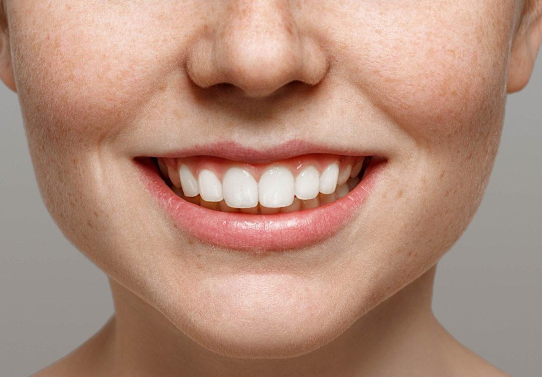 La sante bucco-dentaire en 10 questions